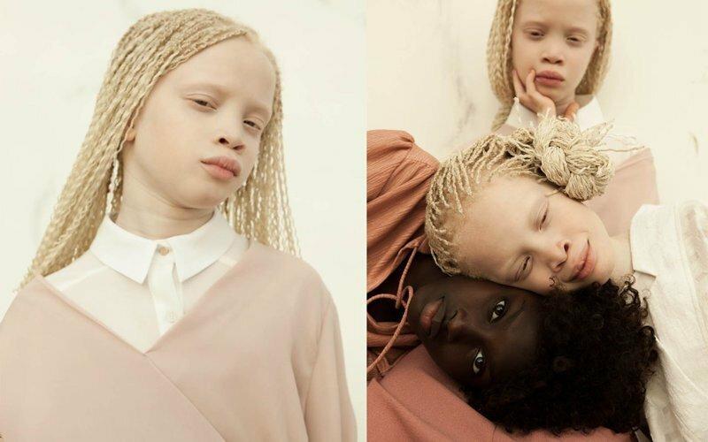 Редкие цветы: близнецы-альбиносы Лара и Мара Бавар, которые покорили модную индустрию