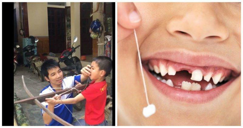 Вьетнамец удалил сыну зуб с помощью арбалета: видео