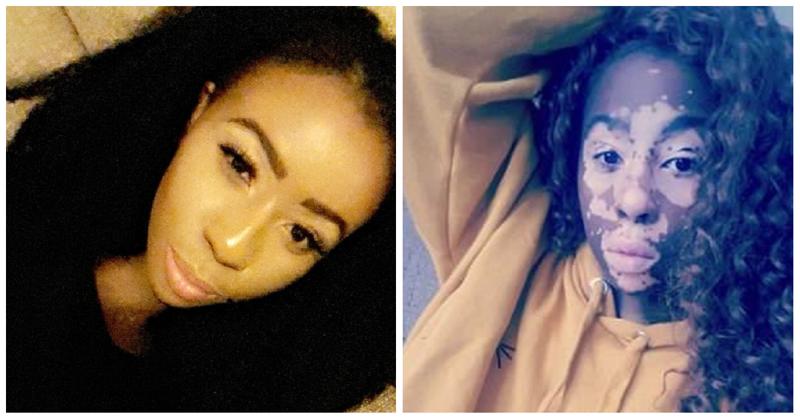 """6 лет девушка прятала лицо за косметикой, потому что ее обзывали """"зеброй"""""""