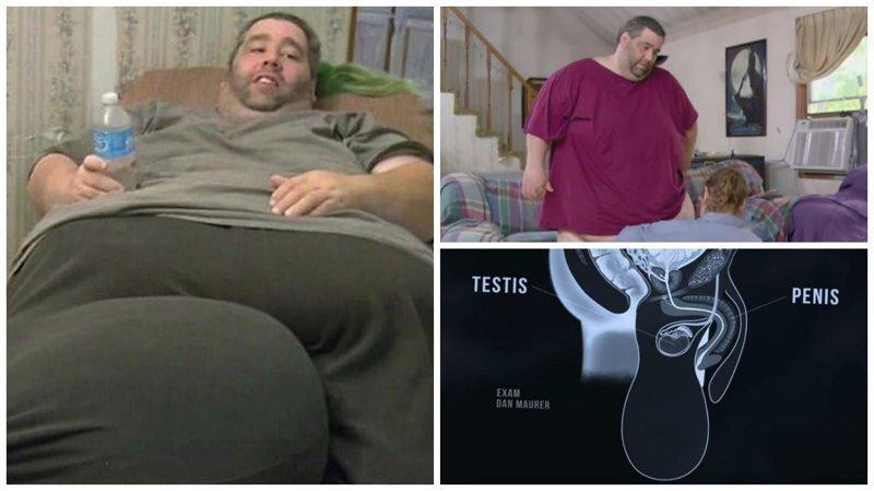 Мужчина с гигантской мошонкой рассказал, как она повлияла на его сексуальную жизнь