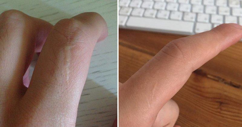 Если ты мужчина, у тебя должен быть шрам на левом указательном пальце