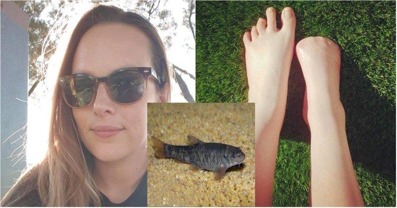 Спа из ада: девушка лишилась пальцев на ноге после пилинга рыбками в Таиланде