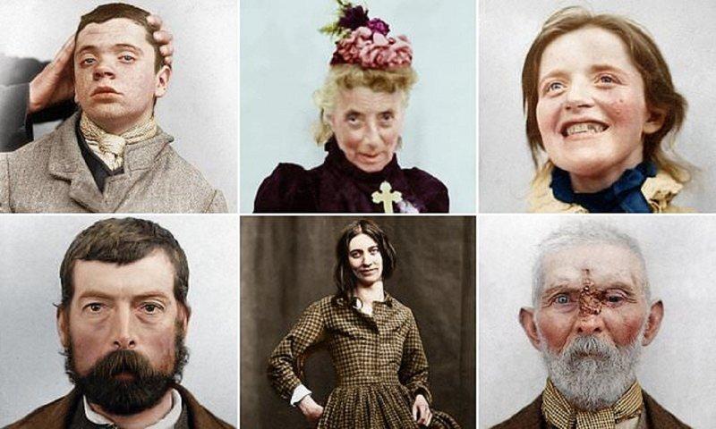Пациенты психушек викторианской эпохи: истории в фотографиях