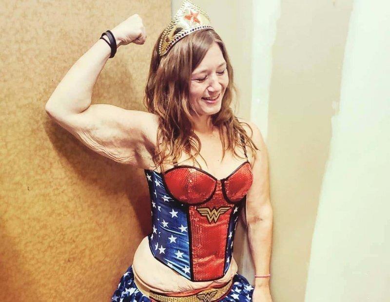 А вот здесь немного подрежем: похудевшей девушке удалили три кило обвисшей кожи