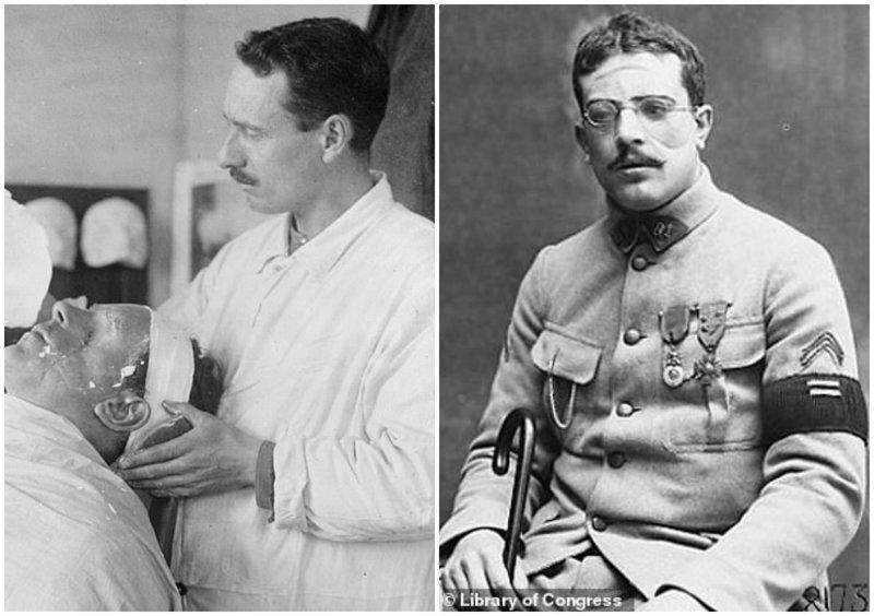 Пластическая хирургия Первой мировой: как хирурги восстанавливали изуродованные лица солдат