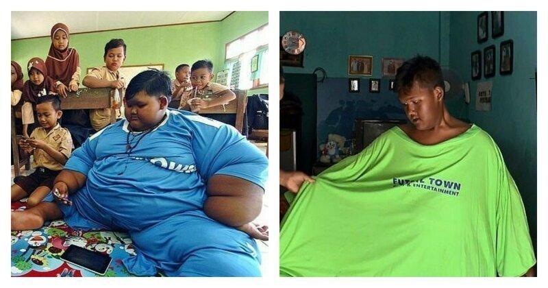Самый толстый мальчик в мире сбросил почти половину собственного веса