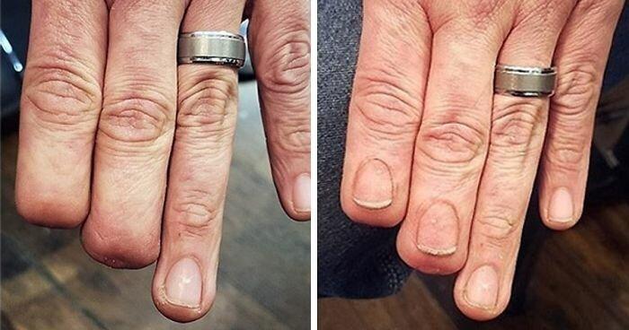 Крутые примеры татуировок для сокрытия шрамов вашей бурной молодости