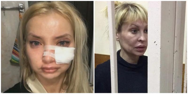 Горе-косметолог изуродовала почти два десятка человек и села в тюрьму