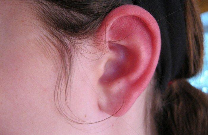 Из-за чего горят уши: медицинское обоснование и народная мудрость
