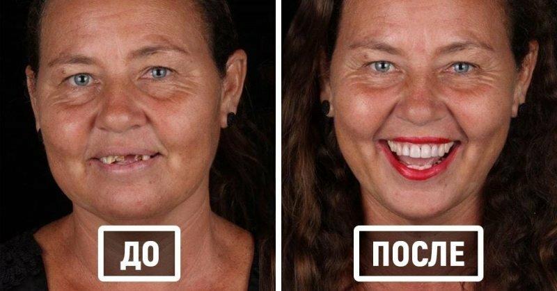 Стоматолог лечит зубы, и фотографии его работ показывают, как людей меняет улыбка