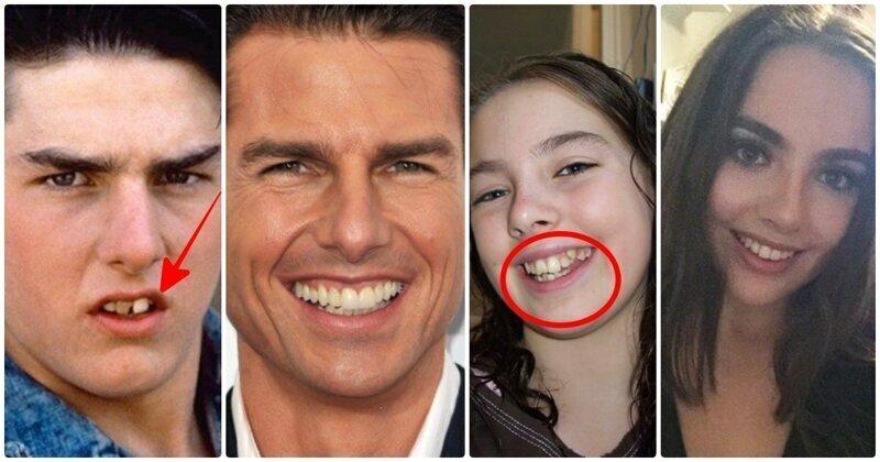 До и после: как брекеты кардинально меняют внешность
