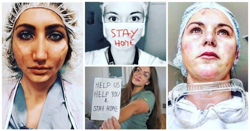 Пронзительные фото ран на лицах красавиц-медсестер, которые просят вас оставаться дома