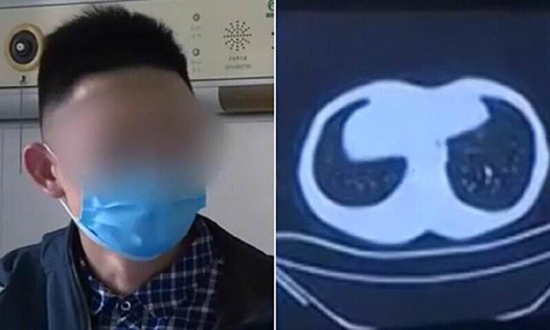 Китайский любитель экзотической кухни наглотался паразитов