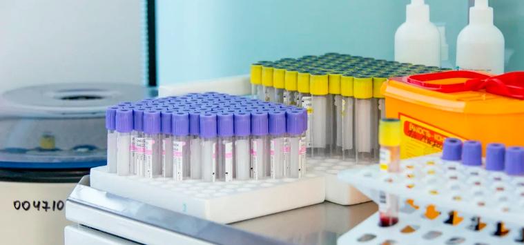 В Москве стартует самое масштабное тестирование в истории — на иммунитет к COVID-19
