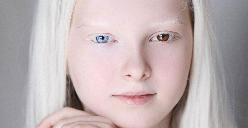 Амина Эпендиева - необыкновенная красавица из Чечни