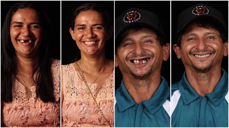 Врач помогает нуждающимся вернуть улыбку во все 32 зуба