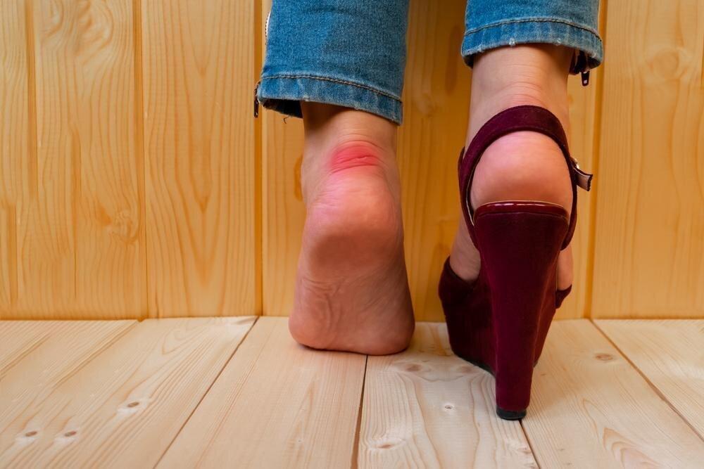 Почему обувь натирает пятки?