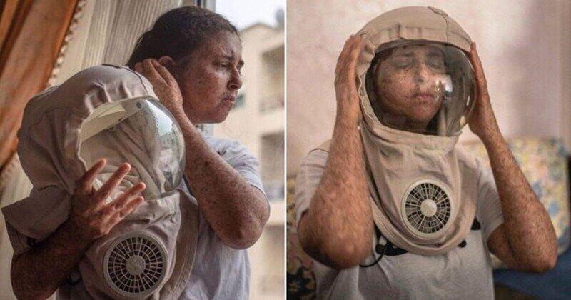 Женщина с аллергией на солнце не выходит на улицу без маски уже двадцать лет