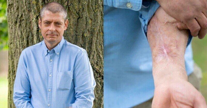Британец после инфекции потерял пенис и теперь отращивает его копию на руке