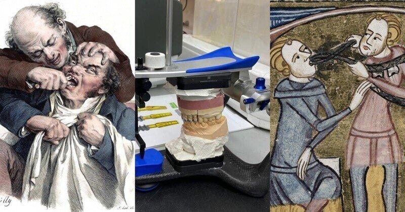О кровавом прошлом, технологичном настоящем и прекрасном будущем стоматологии