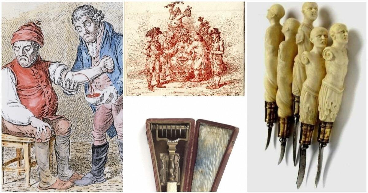 Кровь предков: история кровопускания и его значение в медицине прошлого