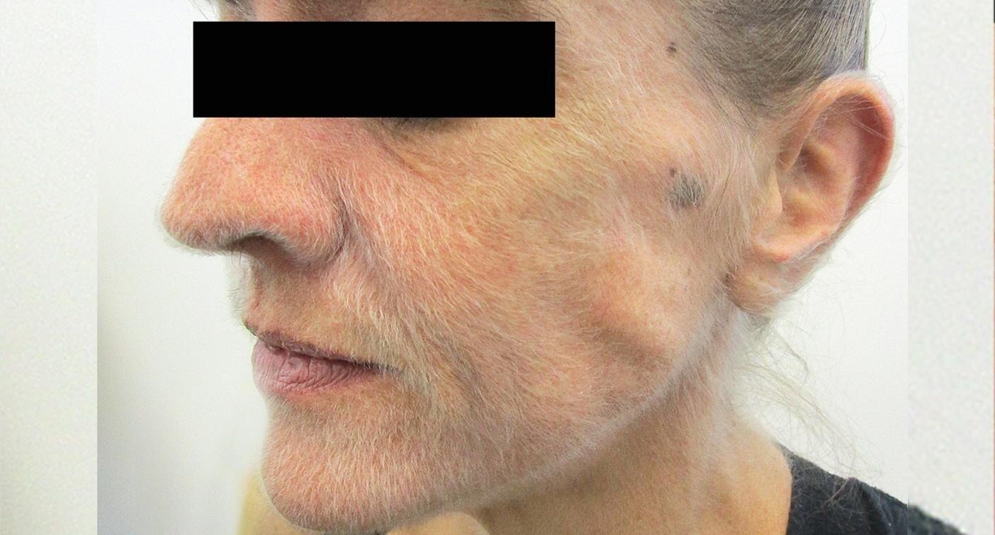 Врачи нашли причину, по которой лицо австралийки обросло шерстью