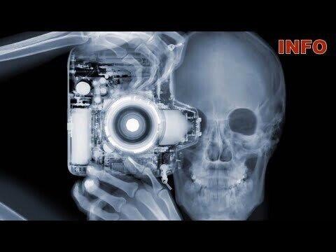 Удивительные вещи, которые может показать рентген