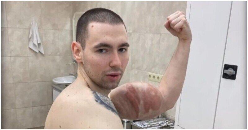 Кирилл Терешин продолжает сдувать свои «руки-базуки» и хвастается шрамами