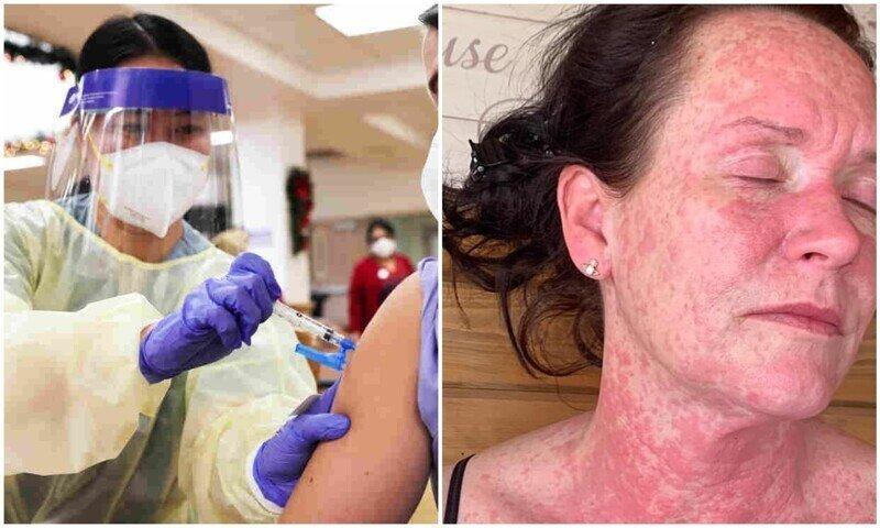 У женщины появилась жуткая сыпь после вакцины AstraZeneca