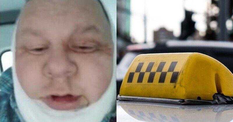 Барнаульский таксист выжил благодаря второму подбородку после того, как неизвестные перерезали ему горло