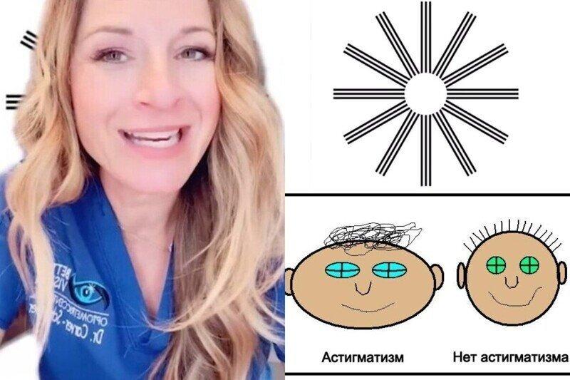 Тест на астигматизм: врач-окулист поделилась простым способом, помогающим определить дефект зрения
