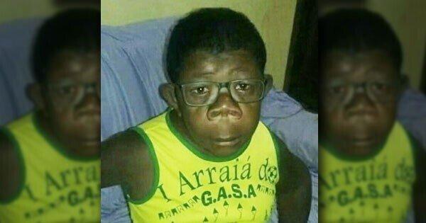 """В Анголе обнаружили мальчика, который """"родился от человека и шимпанзе"""""""
