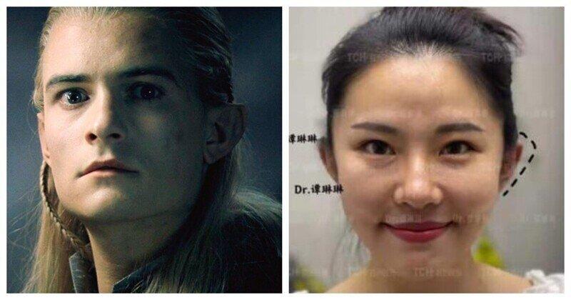 Новый тренд: китайцы тратят тысячи долларов, чтобы сделать эльфийские уши