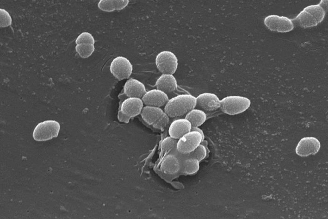 Больше похоже на фантастику: электробактерии, реставраторы мрамора и другие удивительные малыши