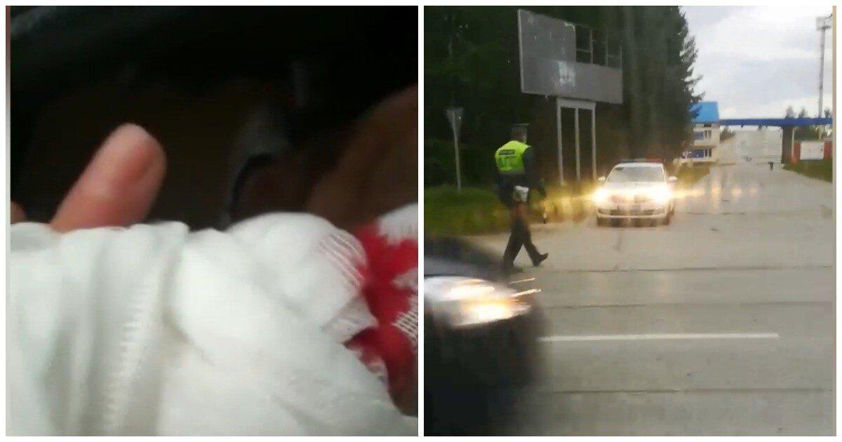 Автоинспекторы оштрафовали водителя, который с отрезанным пальцем торопился в больницу