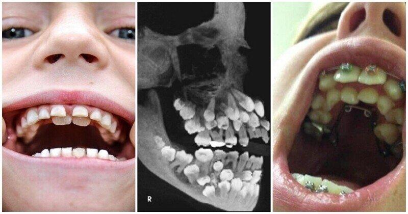 Пугающие факты о человеческом теле: как возникает аномалия зубов
