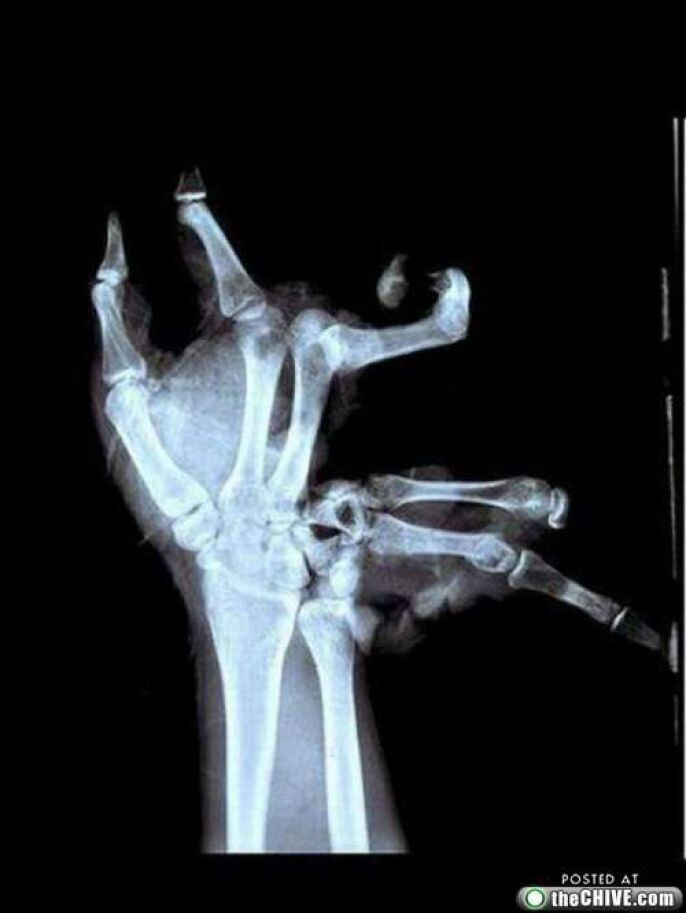 Disgusting Broken Hand X-Ray