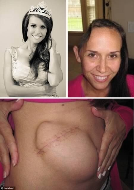 The former beauty queen who had her skull temporally attached to her stomach