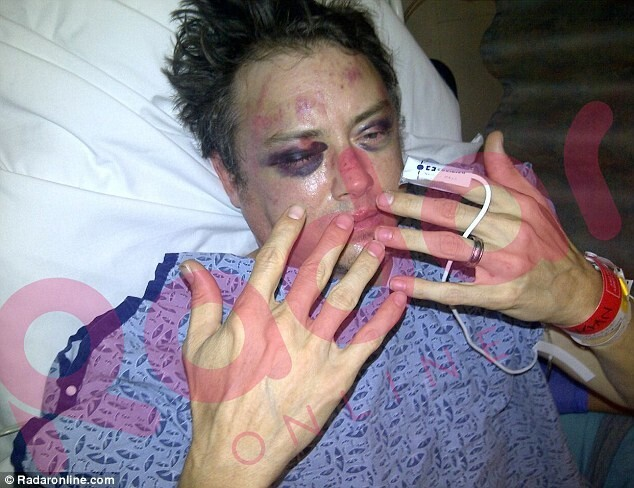 Jason London shows off his bruised and swollen face