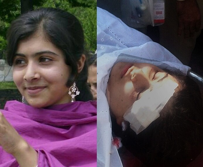 A 15 Year Old Pakistani Girl Survives 2 Gun Shots To The Head, After Becoming A Taliban Victim!