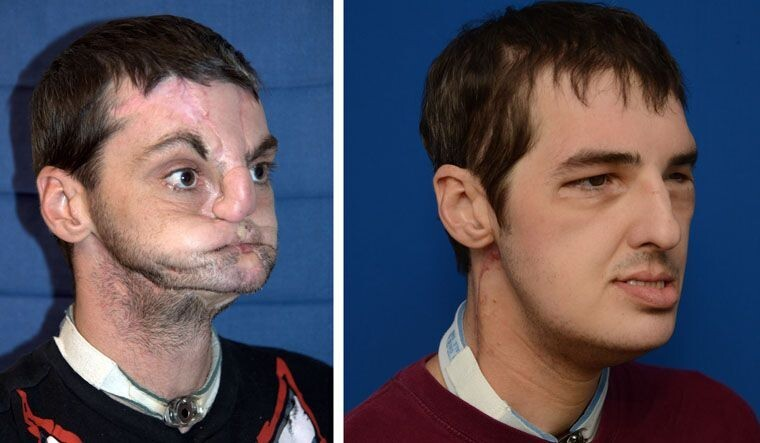 A Man Who Had A Face Transplant Now Looks Fantastic In GQ Magazine