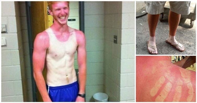 14 Times People Got Totally Burned