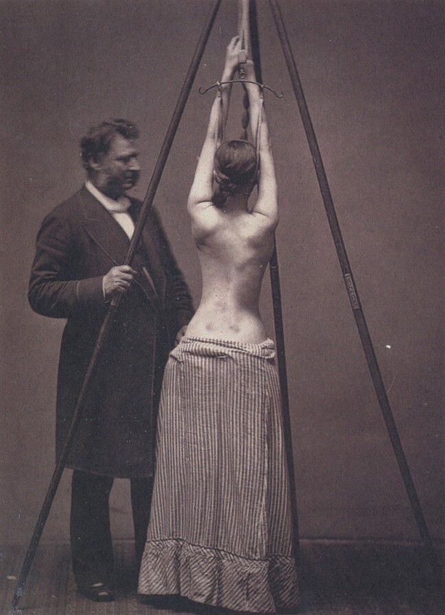 4. Dr. Lewis Sayre treating scoliosis, checking the curvature of the spine.