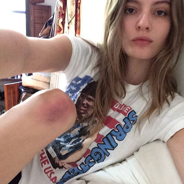 Bruise Springsteen