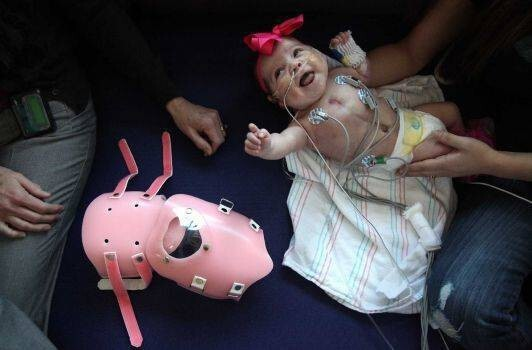 Here's How This Girl Born With Her Heart Outside Her Chest Managed To Survive