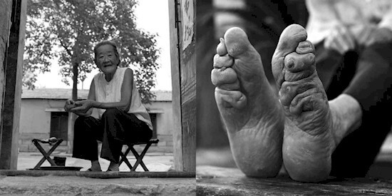 Some girls chose to bind their feet themselves, because it was considered beautiful.