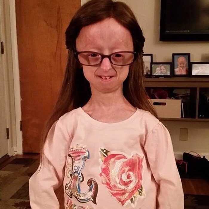 Lindsay suffers from Progeria, a rare genetic disorder that ages the body 8-10 times faster than normal