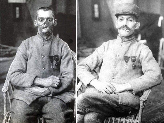 The so-called mutilés were so wounded, some of their faces were barely recognizable