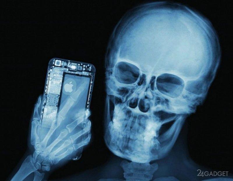 Рентгеновский снимок картинка