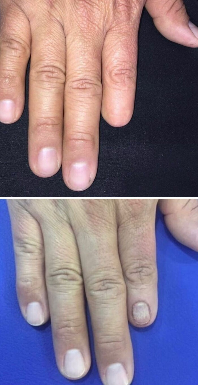 Женщина сделала тату в виде ногтя